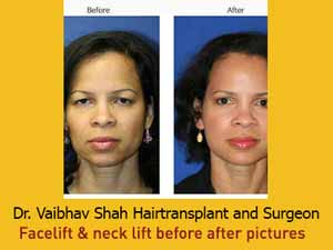How to Choose The Right Cosmetic Surgeon For Facelift Surgery in Mumbai
