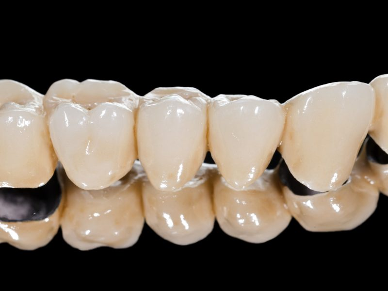 Best Tips to Getting Dental Crowns and Bridges