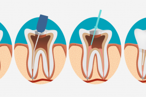 What Instructions To Follow After Wisdom Teeth Removal Surgery?