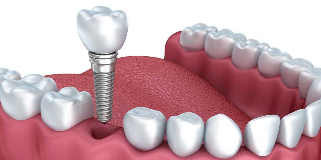 Many people nowadays opt for all-on-4 dental implants, but not all of them make educated choices in this respect. Let the best dental implants liverpool clinic address the most common errors to prevent dental implants all-on-4 type.