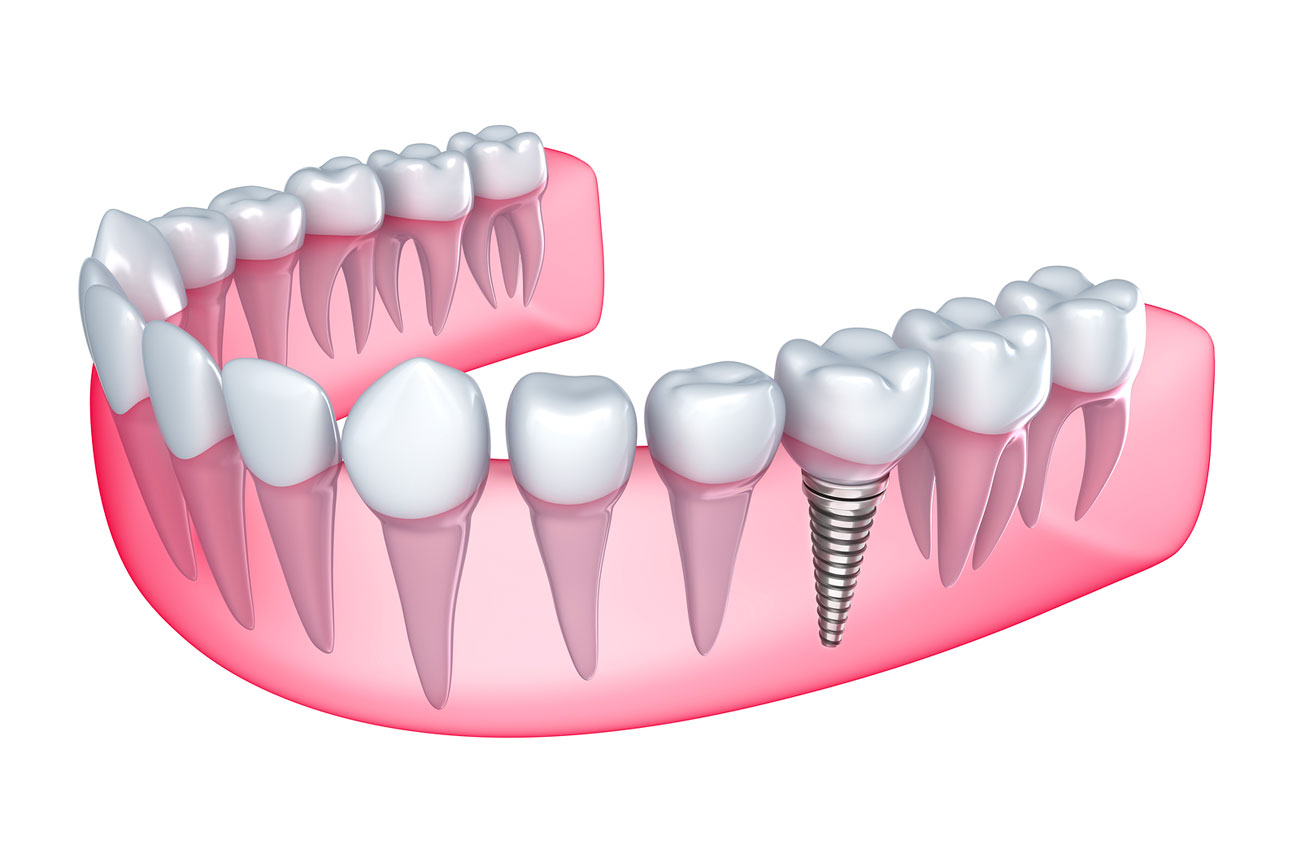 affordable dental implant in Sydney