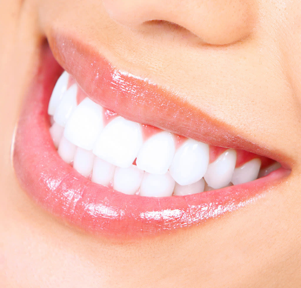 Why Choose Professional Teeth Whitening Over DIY Kits?