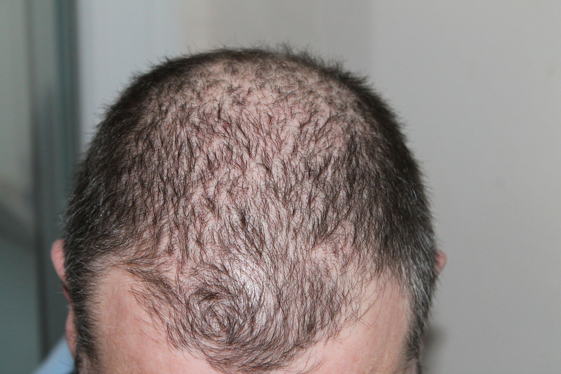 10 Important Questions To Ask Before DHI Hair Implantation