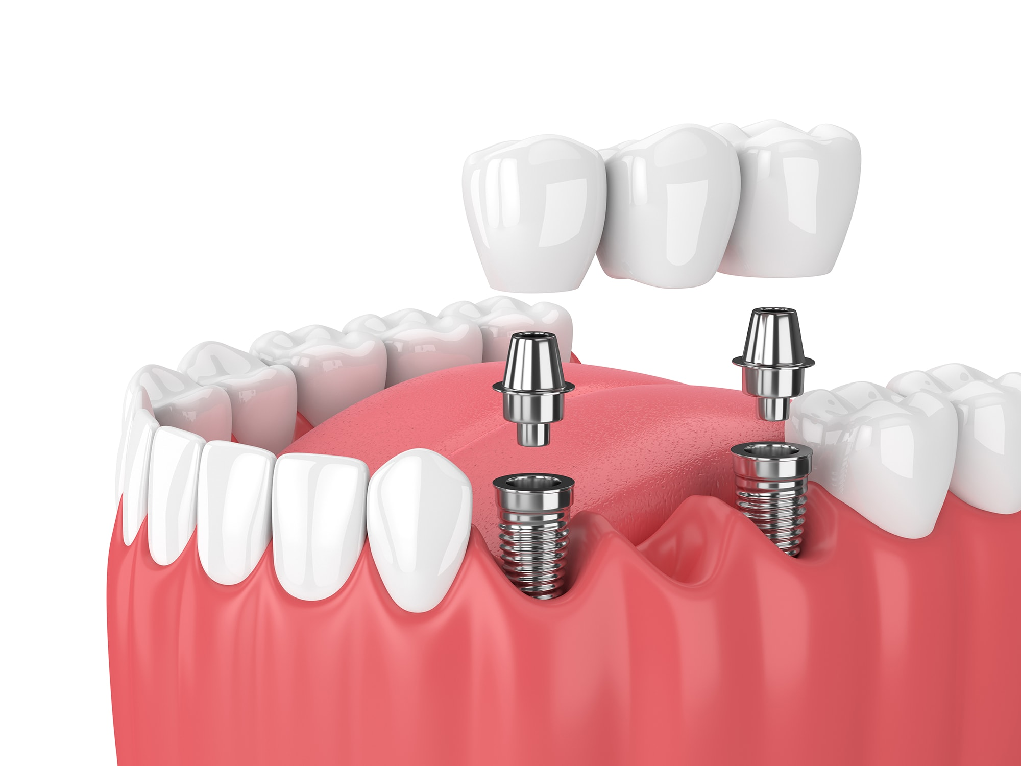 The Right Time To Get Hold Of Affordable Dental Implants In Sydney